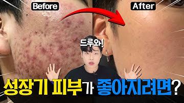 성장기 내 피부 어떻게하면 좋아질까?🤔 l  피부를 망치는 주범 OOO을 잡아라!👊 ㅣ 댓글이벤트🎁