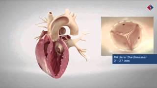 Herz und Blutkreislauf - Zusammenschnitt von Volle Leistung für das Herz