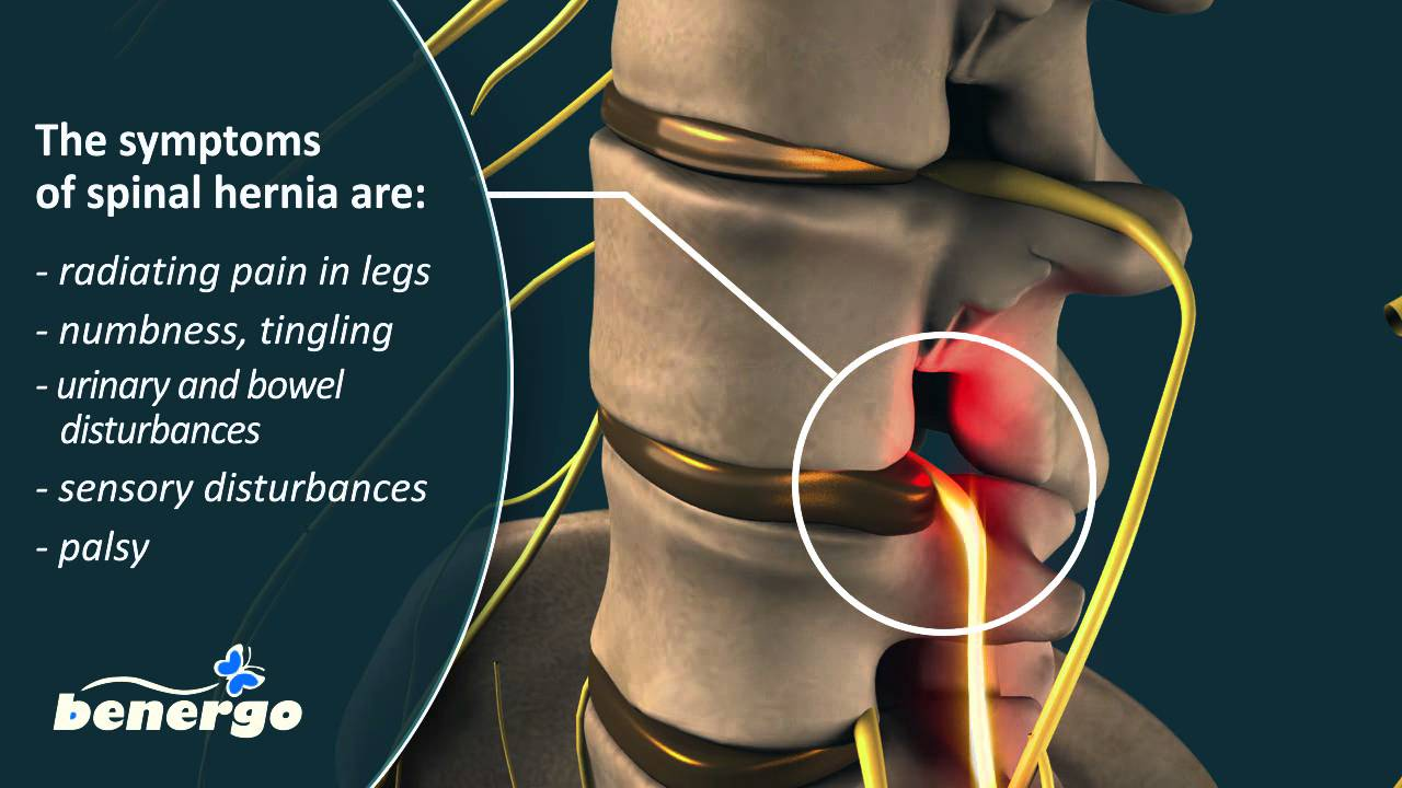 Spinal hernia 27