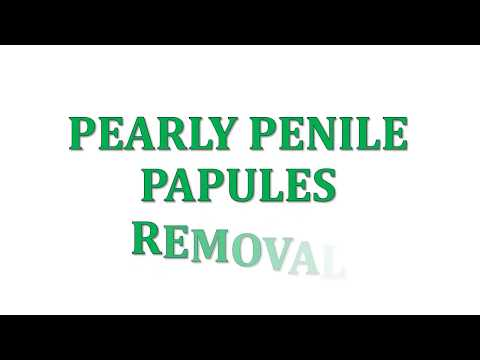 how to remove pearly penile papules at home fast and easy - youtube, Skeleton