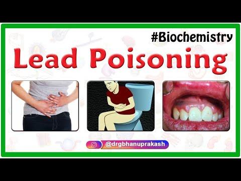 Lead Poisoning - Usmle step 1 biochemistry webinar lecture
