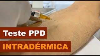 Teste PPD - Intradérmica