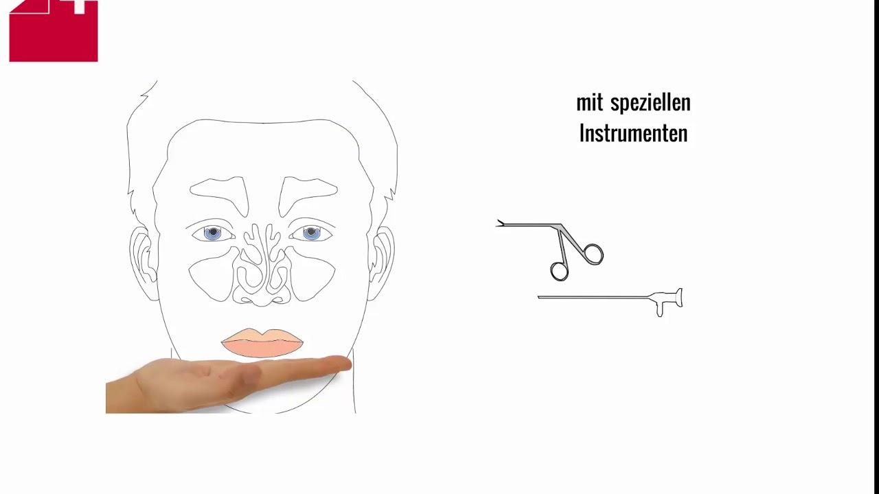 Groß Nase Knochen Bilder - Menschliche Anatomie Bilder ...