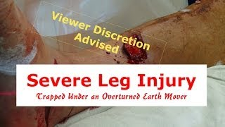 Severe Leg Injury and Deformity (Viewer Discretion Advised)