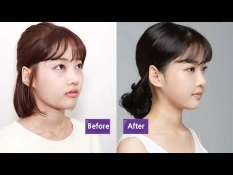 Реальная история: блефаропластика + сокращение скуловой кости + липофилинг лица в клинике JW Корея!