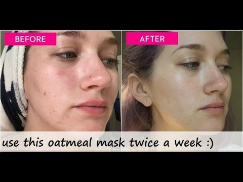 How to get rid of acne in 1 hour
