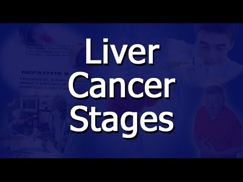Liver Cancer Stages - YouTube