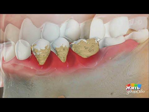 Жить здорово! Зубной