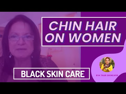 Black Skin Care Treating Chin Hair In Black Women Youtube