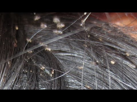 Severe Pediculosis Capitis - YouTube