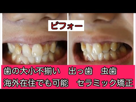 夢見た歯並びを一日で手に入れました