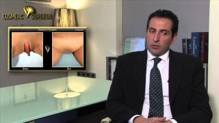 Clitoral Hoodectomy | Cosmetic V surgeon