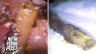 Ear doctor finds mysterious plastic object buried under earwax | New York Post
