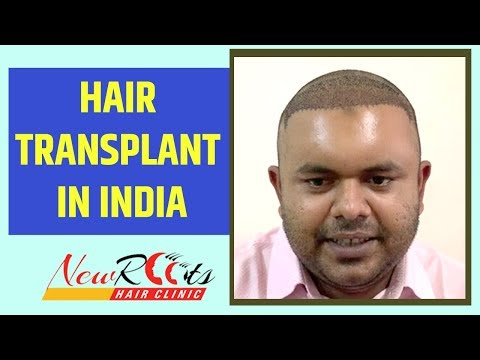 hair-transplant-in-india-|-new-roots-hair-clinic-|-hair-transplant-tourism
