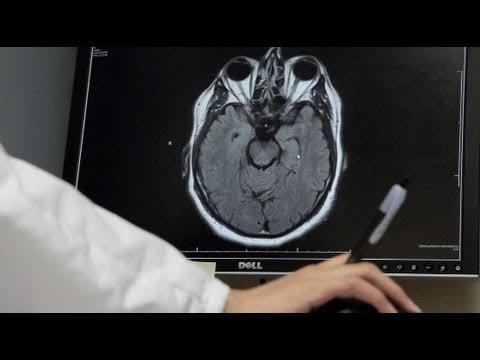 Life As A Neurology Resident