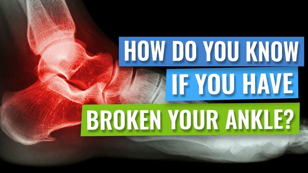 How do you know if you have broken your ankle? - YouTube