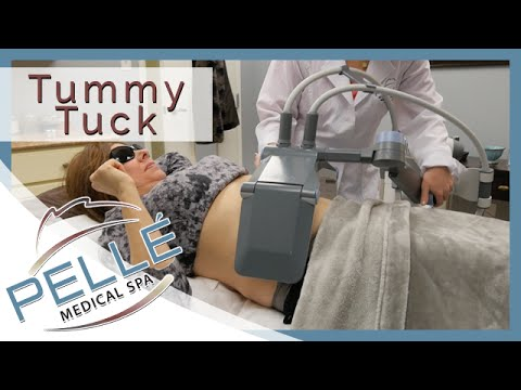 Tummy Tuck Manchester NH - Special Offer - Pelle Medical Spa