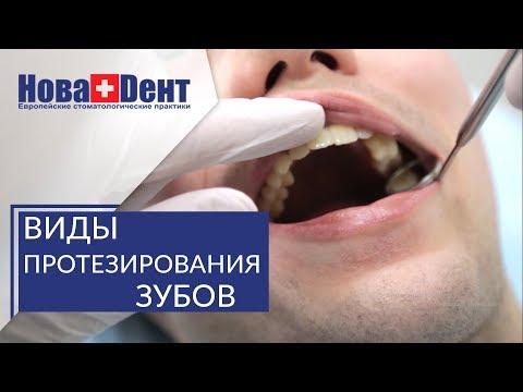 Протезирование зубов при полной потере. 🔬 Варианты протезирования при полной потере зубов. НоваДент