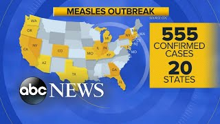 'Patient zero' identified in Michigan measles outbreak: Report