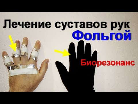 Лечение суставов фольгой. Болят руки и ноги. Боль уходит. Артрит. Артроз
