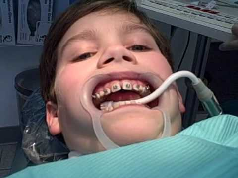 More About Getting Braces