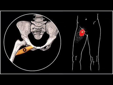 Латеральная мышца бедра болит тянет