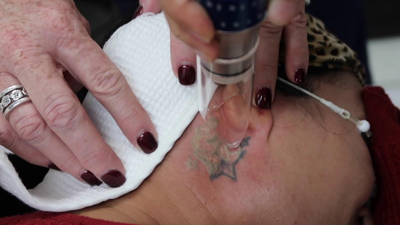 Laser Tattoo Removal at Ali'i Nani - YouTube