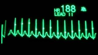 Supraventricular Tachycardia with Synchronized Cardioversion   YouTube