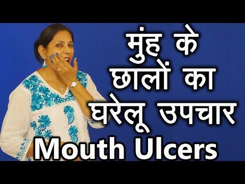 मुहं के छालों के घरेलू उपचार । Home Remedies For Mouth Ulcers | Ms Pinky Madaan