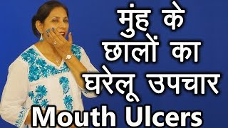 Home Reme Mouth Ulcers