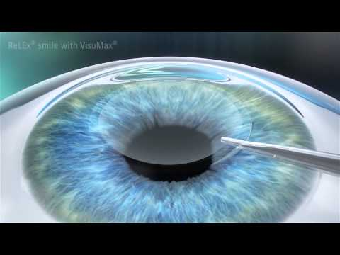 SMILE Laser Eye Surgery Procedure - Dr Colin Chan Vision Eye Institute