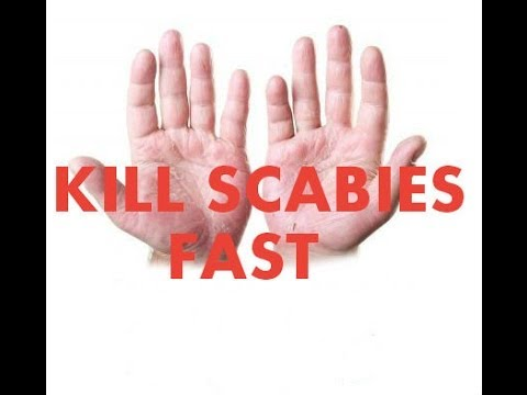Scabies Home Treatment Tricks Review ( Kill Scabies Fast )