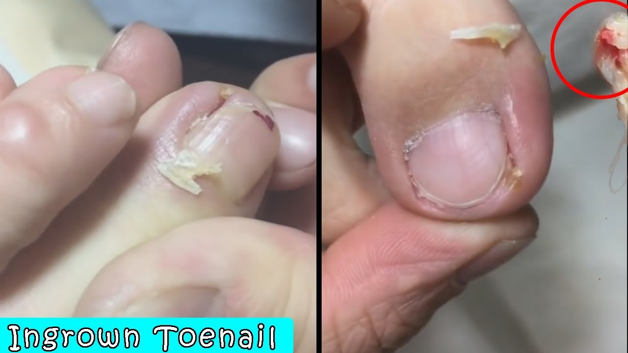Ingrown Toenail Surgery How To Removal Treatment Pedicure Tutorial 7