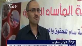 """منظمة حقوقية:  7530 انتهاكا من الحوثيين ضد المدنيين في """"الوازعية"""" باليمن"""
