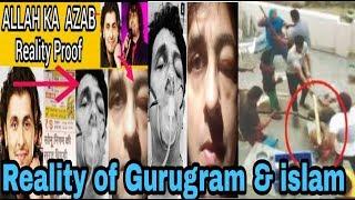 Sonu Nigam suffer from very Big Disease//Allah ka azab//Gurugram Reality