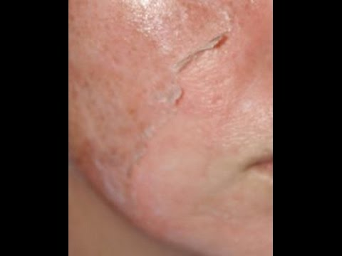 How To Prepare Glycolic Acid Peel at Home || Glycolic Acid Peel ||