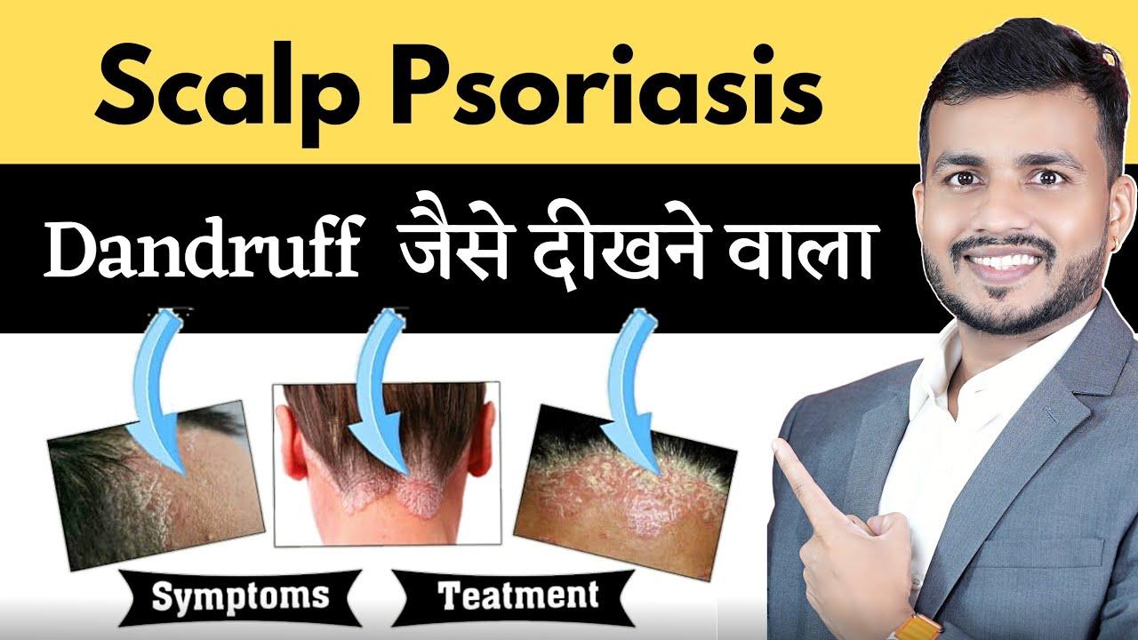 scalp psoriasis treatment in ayurveda