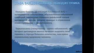 видео Базедова болезнь: симптомы и методы её лечения