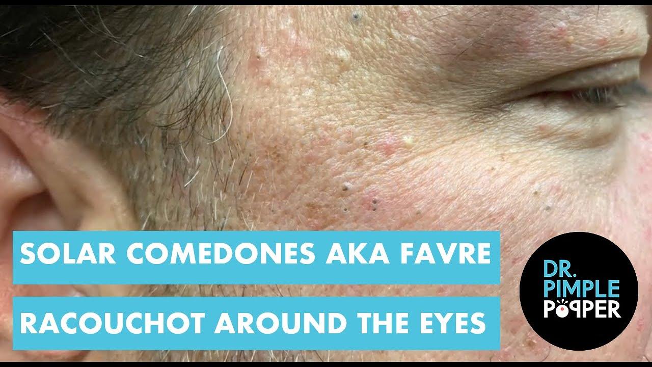 Dr  Pimple Popper Pops Blackheads Clustered Around Man's
