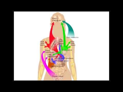 Common Cancer Metastases - Brain, Liver & Bone Metastasis