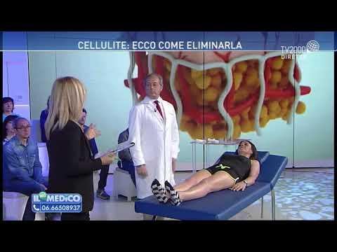 Il mio medico - Cellulite: ecco come eliminarla