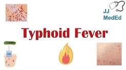 Typhoid Fever: Pathogenesis (vectors, bacteria), Symptoms, Diagnosis, Treatment, Vaccine
