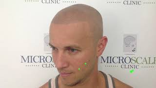Welcome to Micro Scalp Clinic