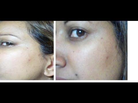 paulas choice weekly resurfacing treatment