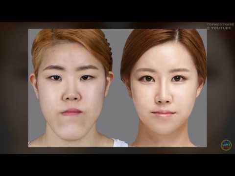 Корейская пластическая хирургия до и после 50 Фото