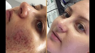 Tretin 0.025% For Remove Pimple Holes and Pimples Black Marks Review Hindi