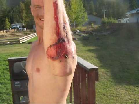 How to Care for Road Rash