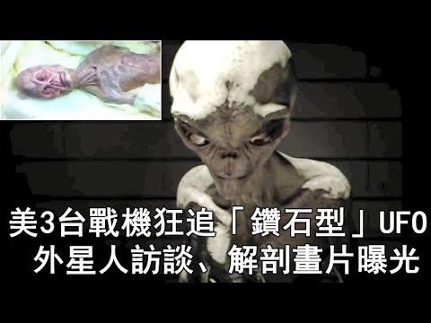 挑戰新聞軍事精華版-- 美3台戰機狂追「鑽石型」UFO; 美軍51區「外星人訪談」、俄KGB解剖外星人影片曝光