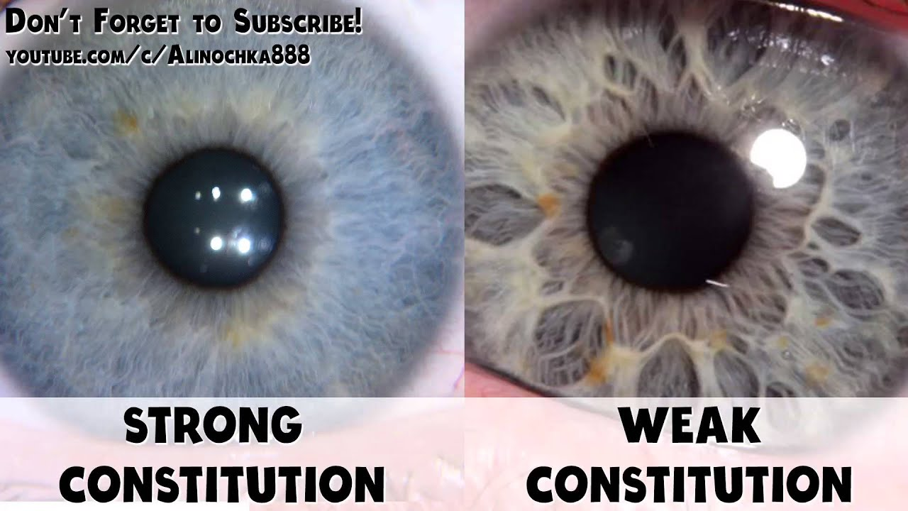 Iridology Strong Constitution Vs Weak Constitution