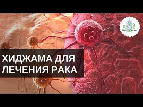 Хиджама для лечения рака | Обучение Хиджаме - YouTube